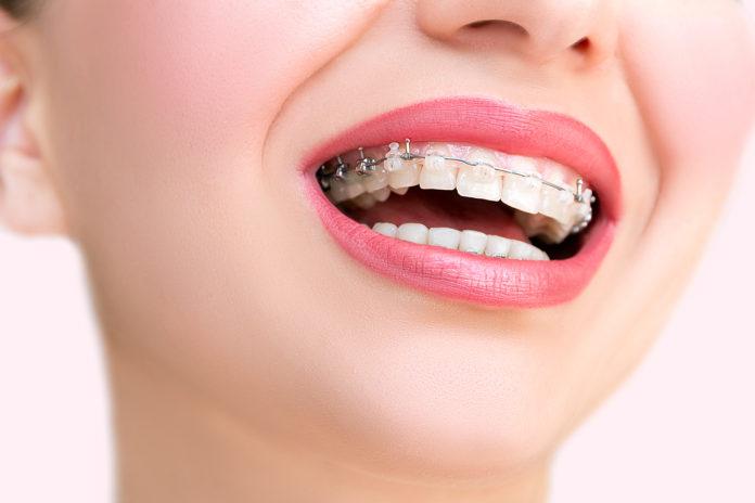 Kiedy do ortodonty
