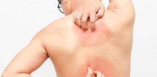 Choroba skóry