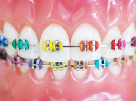 Ortodoncja - aparat na zębach