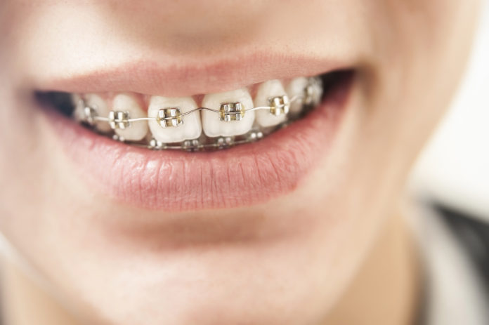 Aparat ortodontyczny u dziecka