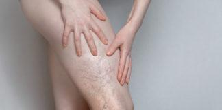 zbliżenie na kobiecą nogę żylaki przewlekłą niewydolność żylna