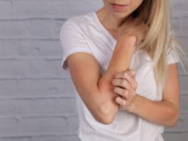 kobieta drapiąca się po ręku AZS