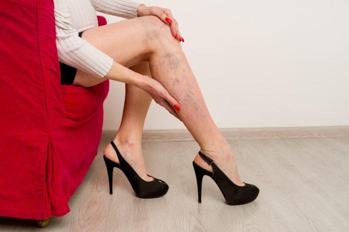 bolesne żylaki na nogach